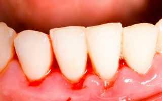 Кровоточит десна между зубами