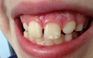 Побелела десна возле зуба