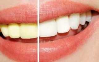 Отбеливающий гель для зубов